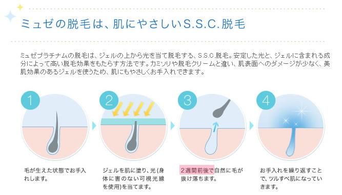 20120116_ミュゼの脱毛方法 SSC脱毛